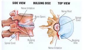 2 hern disc side